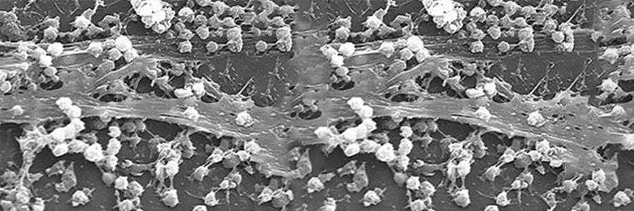 Factors to Consider as Legionella Outbreaks Continue